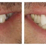 Thumbnail of http://Porcelain%20fused%20to%20zirconia%20crowns%20by%20Michelle%20Snyder,%20DDS