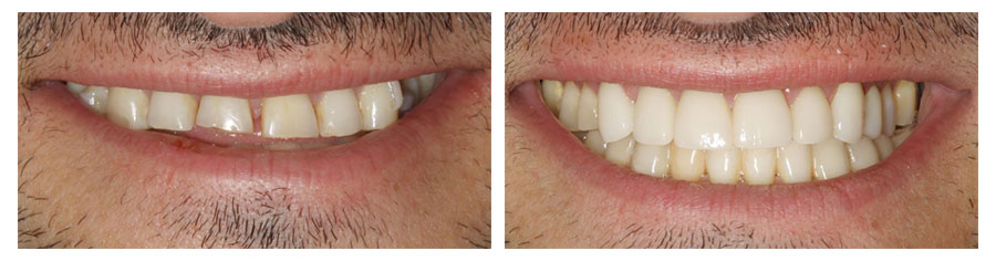 Porcelain fused to zirconia crowns by Michelle Snyder, DDS