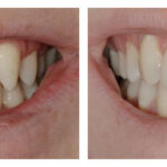 Thumbnail of http://Veneers%20and%20Maryland%20Bridge%20by%20Michelle%20Snyder,%20DDS