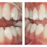 Thumbnail of http://Diastema%20closure%20with%20cosmetic%20bonding%20by%20Michelle%20Snyder,%20DDS