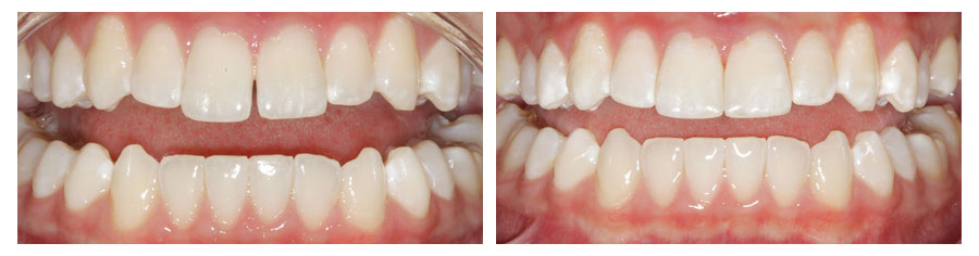 Diastema closure with cosmetic bonding by Michelle Snyder, DDS