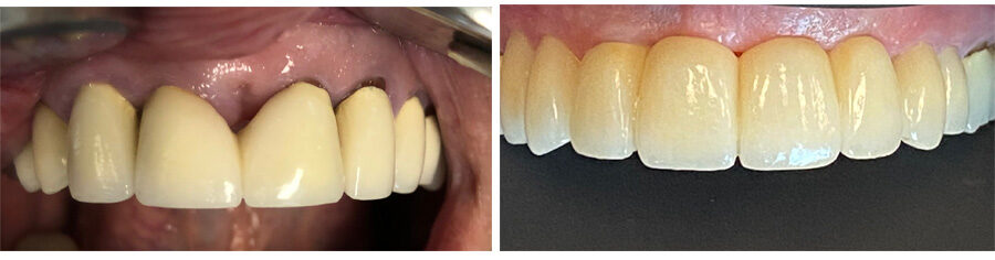Implants and Crowns performed by Stacia Krantz, DDS