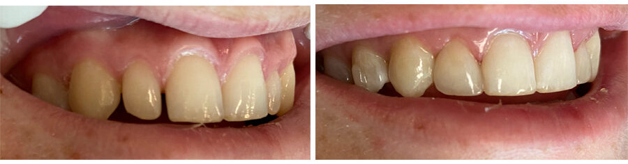 Tooth Bonding performed by Stacia Krantz, DDS